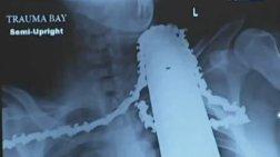 Σώθηκε από αλυσοπρίονο στο λαιμό