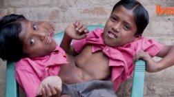 Σιαμαίοι στην Ινδία δεν θέλουν να χωρίσουν ποτέ