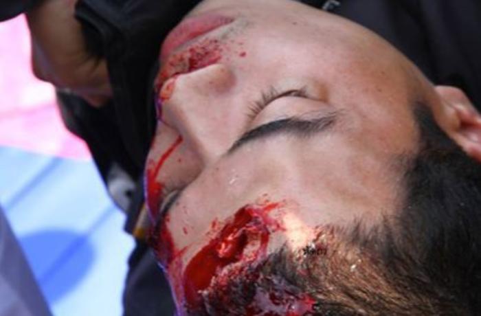 Μπανγκόκ: Έκρηξη χειροβομβίδας στα πόδια αστυνομικών