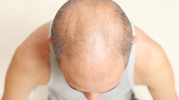 Ποιος τύπος φαλάκρας «δείχνει» καρκίνο του προστάτη