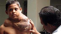 Αφαίρεσαν τεράστιο όγκο από το λαιμό 11χρονου