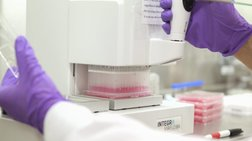 Ετοιμη η πρώτη ταχεία δοκιμή για τον Εμπολα-Γρήγορα αποτελέσματα