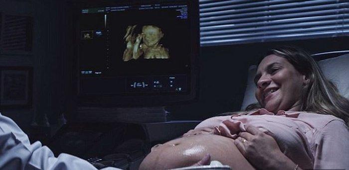 Τυφλή μέλλουσα μαμά «βλέπει» το αγέννητο μωρό της για πρώτη φορά! - εικόνα 3