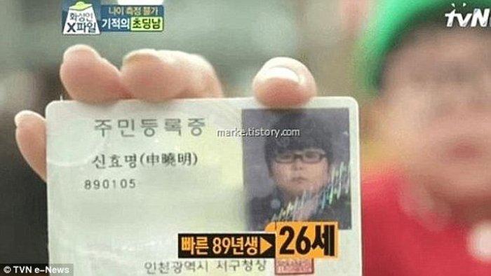 Ο 10χρονος είναι 26 ετών! Πάσχει από σύνδρομο Χάιλάντερ - εικόνα 3