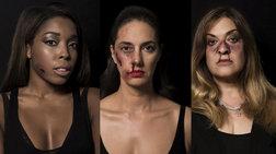 Φωτογράφηση σοκ: Διάσημες Ελληνίδες με σημάδια κακοποίησης