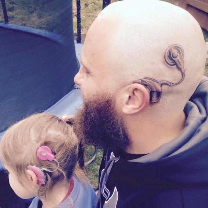 Εκανε τατουάζ το πρόβλημα ακοής της κόρης του για να μην νιώθει άσχημα!