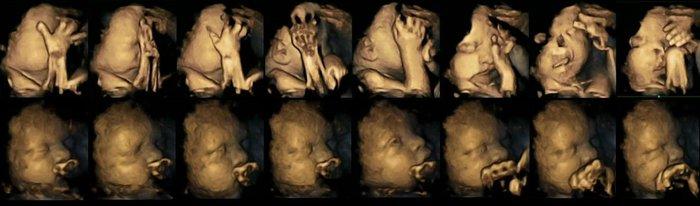 Η σοκαριστική αντίδραση εμβρύου όταν καπνίζει η μαμά του (φωτο)