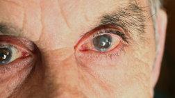 Οφθαλμικές σταγόνες θα θεραπεύουν τον καταρράκτη