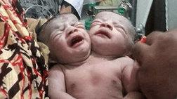 Μωρό γεννήθηκε με δύο κεφάλια στο Μπαγκλαντές