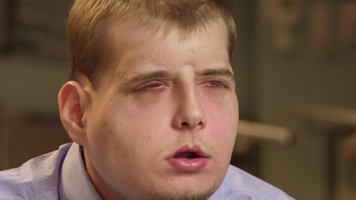 Αυτή είναι η πιο εκτεταμένη μεταμόσχευση προσώπου που έγινε ποτέ - εικόνα 2