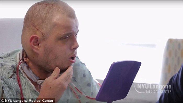 Αυτή είναι η πιο εκτεταμένη μεταμόσχευση προσώπου που έγινε ποτέ - εικόνα 3