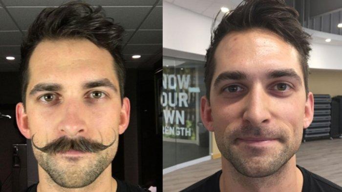 Movember: Οι άνδρες αφήνουν μουστάκι το Νοέμβριο και νικούν τον καρκίνο