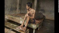 Στα ψυχιατρεία της Ινδονησίας: «Eτσι είναι να ζεις στην κόλαση»