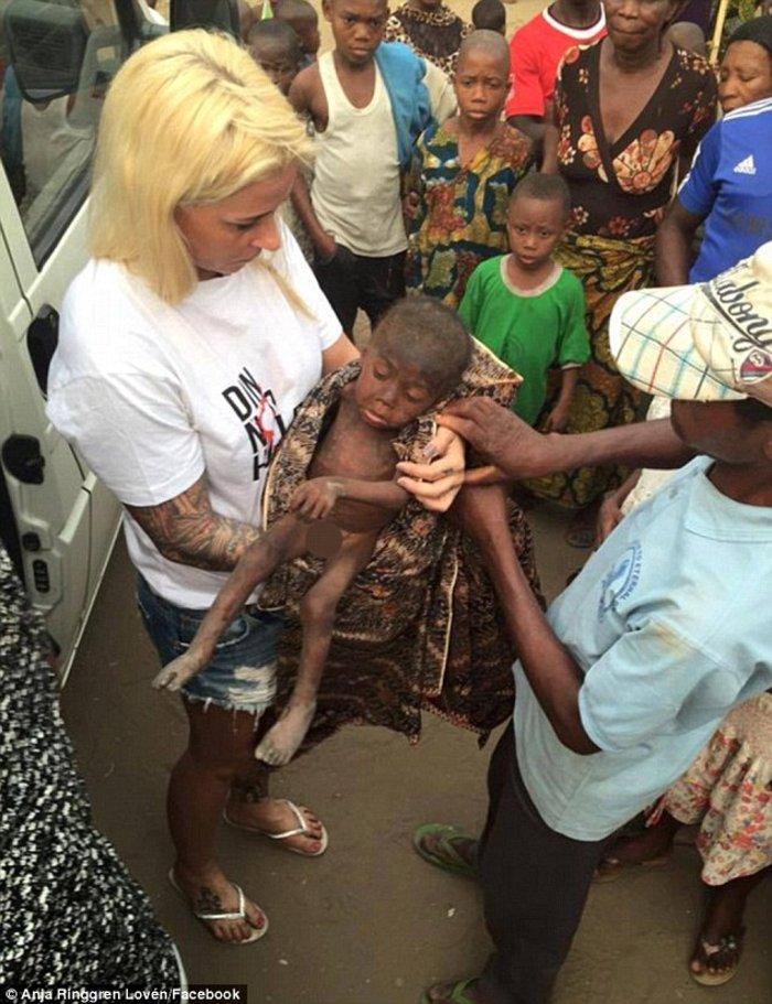 Το «παιδί-μάγος» σώθηκε: Χρειάστηκαν οκτώ εβδομάδες και πολλή αγάπη... - εικόνα 2