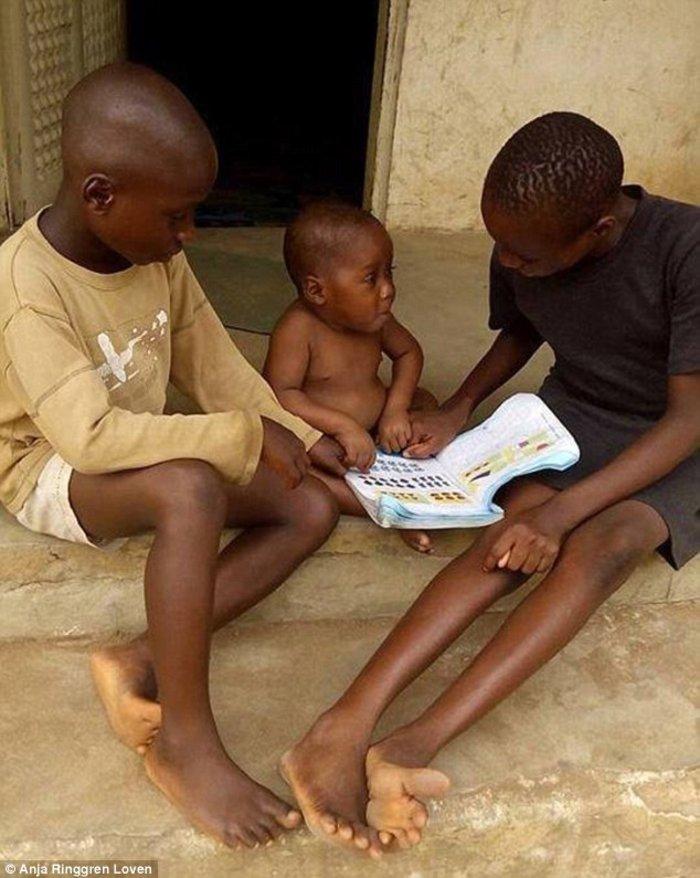 Το «παιδί-μάγος» σώθηκε: Χρειάστηκαν οκτώ εβδομάδες και πολλή αγάπη... - εικόνα 4