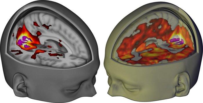 Εντυπωσιακή ανακάλυψη: Έτσι επιδρά το LSD στον εγκέφαλο