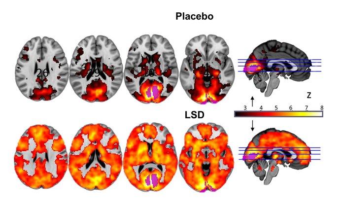 Εντυπωσιακή ανακάλυψη: Έτσι επιδρά το LSD στον εγκέφαλο - εικόνα 2