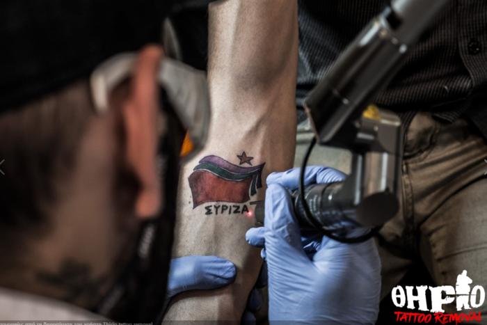 Είχε «χτυπήσει» τατουάζ με το λογότυπο του ΣΥΡΙΖΑ και το αφαίρεσε - εικόνα 2