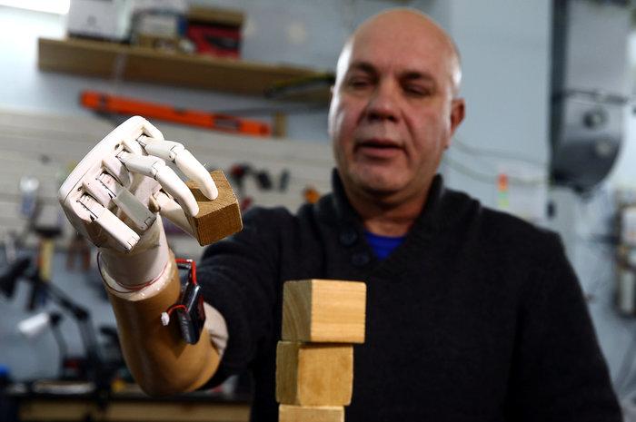 Εφτιαξε μηχανικό χέρι για να παίζει ο πατέρας με τη εγγονή του - εικόνα 3