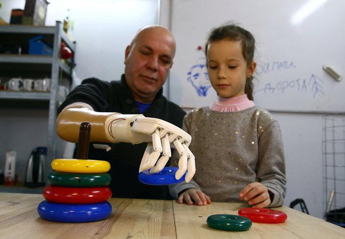 Εφτιαξε μηχανικό χέρι για να παίζει ο πατέρας με τη εγγονή του - εικόνα 4
