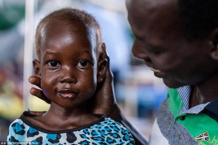Οι 11 μέρες που άλλαξαν τη ζωή ενός υποσιτισμένου κοριτσιού στο Σουδάν - εικόνα 4
