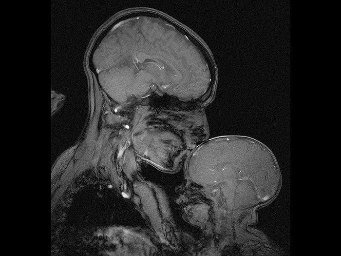 Ο διαχρονικός δεσμός μητέρας - παιδιού μέσα από μια μαγνητική τομογραφία