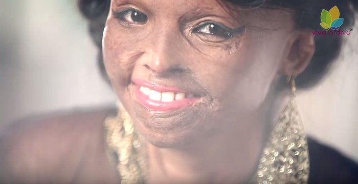 Face of Courage: Θύμα επίθεσης με οξύ αλλάζει τα δεδομένα της ομορφιάς