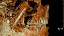 Οι Αρχαίοι Ρωμαίοι δεν χρειάζονταν οδοντίατρο, εξαιτίας ενός φαγητού