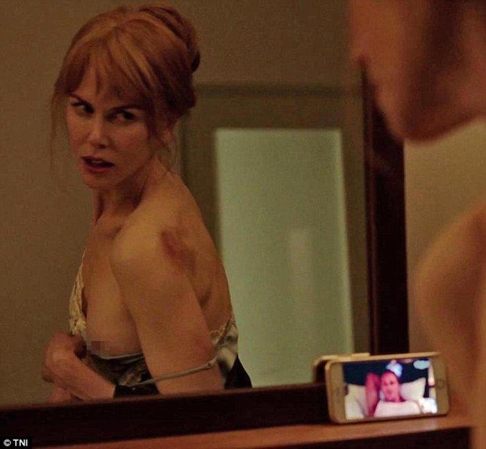 Nικόλ Κίντμαν: Τόπλες και θύμα ενδοοικογενειακής βίας με μώλωπες στο κορμί - εικόνα 8