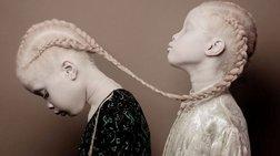 Δίδυμα κορίτσια με αλμπινισμό κατακτούν τον κόσμο της μόδας
