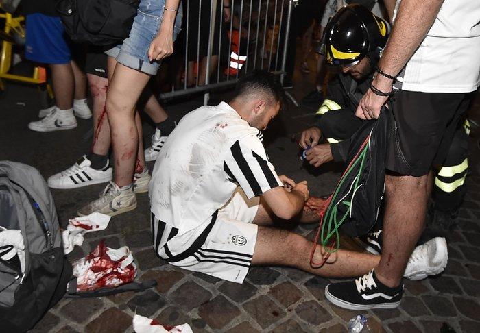 Παρ' ολίγον τραγωδία στην Ιταλία: 1.400 τραυματίες στο Τορίνο - εικόνα 9