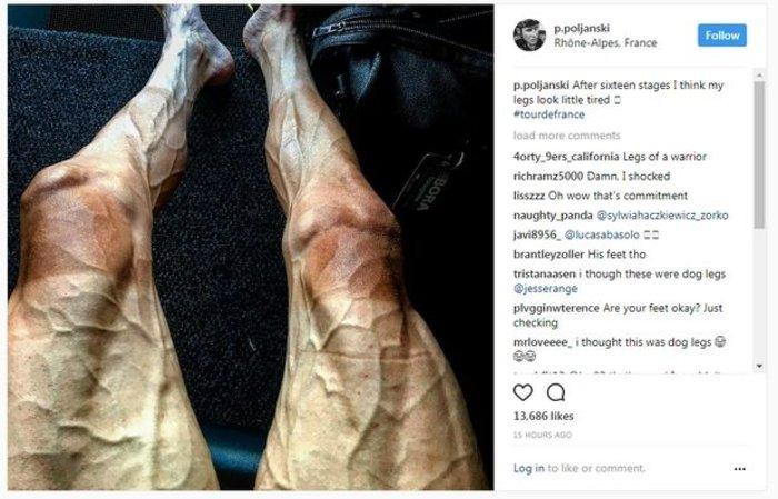 Σοκ από τα πόδια ποδηλάτη μετά τον γύρο της Γαλλίας