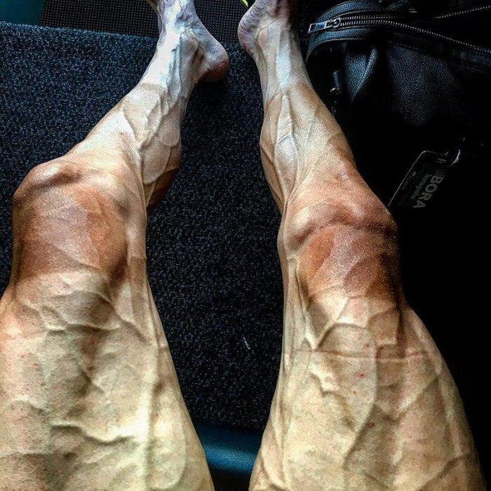 Σοκ από τα πόδια ποδηλάτη μετά τον γύρο της Γαλλίας - εικόνα 2