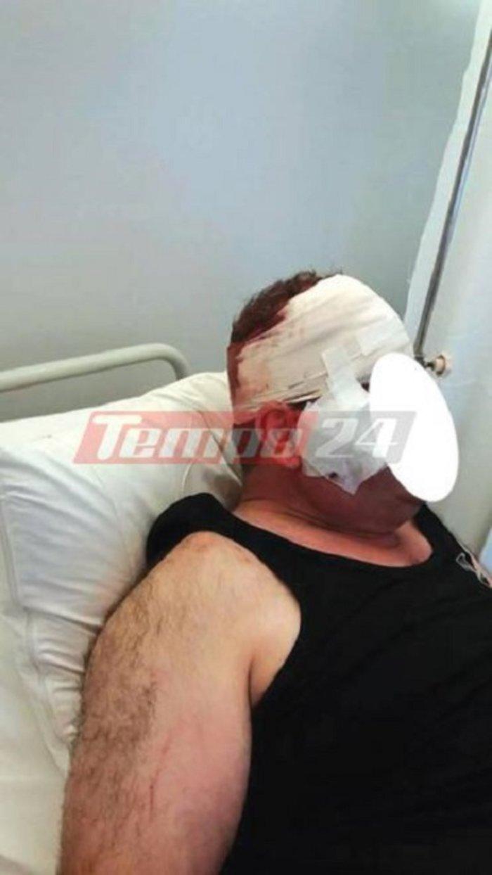 Γιατρός χαράκωσε ασθενή στο πρόσωπο με ποτήρι (ΣΚΛΗΡΕΣ ΦΩΤΟ)