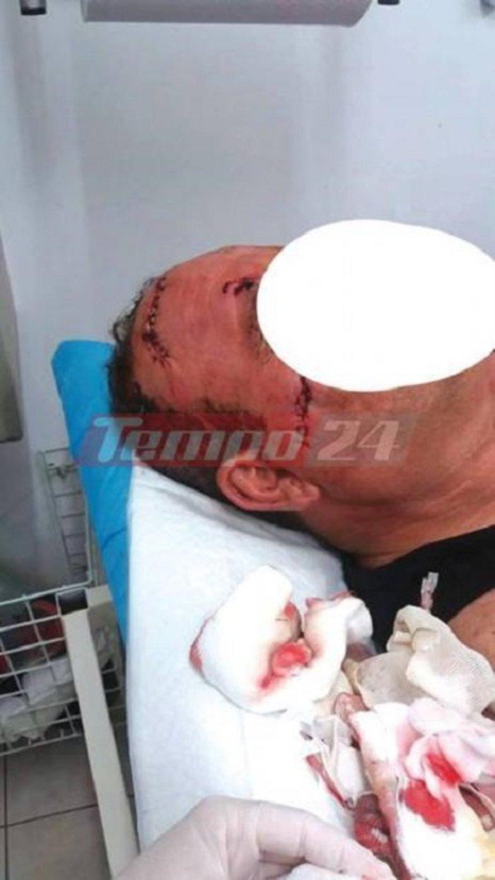 Γιατρός χαράκωσε ασθενή στο πρόσωπο με ποτήρι (ΣΚΛΗΡΕΣ ΦΩΤΟ) - εικόνα 2