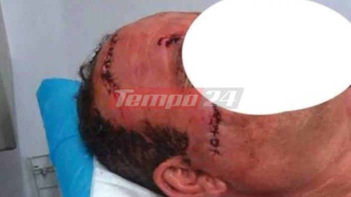 Γιατρός χαράκωσε ασθενή στο πρόσωπο με ποτήρι (ΣΚΛΗΡΕΣ ΦΩΤΟ) - εικόνα 3