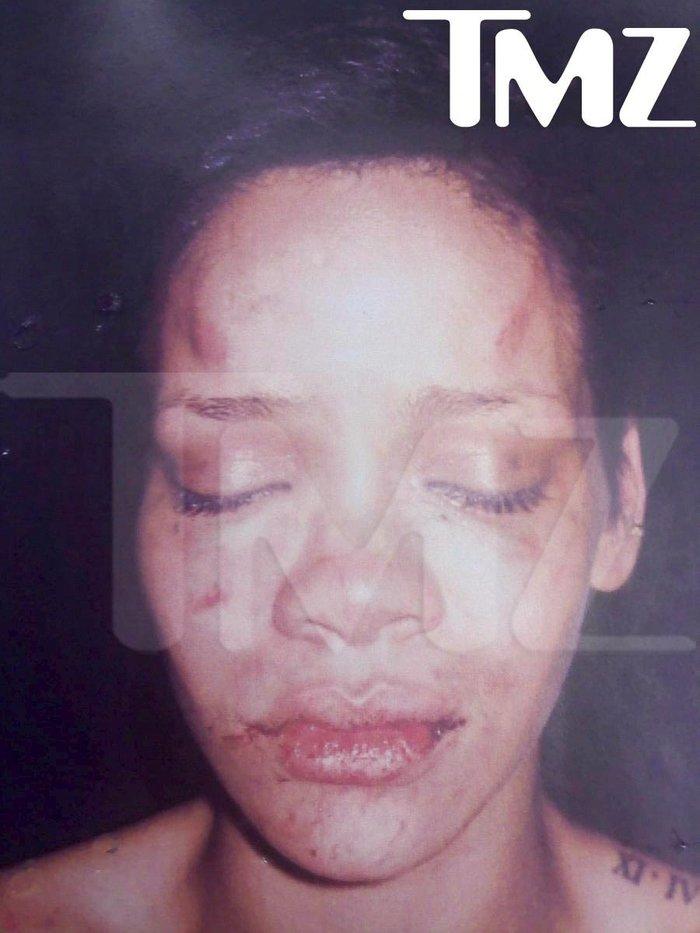 H Rihanna μετά τον άγριο ξυλοδαρμό της από τον Chris Brown