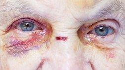 Κρήτη: Έβαλε κάμερες και είδε την κακοποίηση της 79χρονης μητέρας της