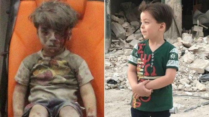 Ομράν: Το παιδί - σύμβολο του πολέμου, ένα χρόνο μετά - εικόνα 3