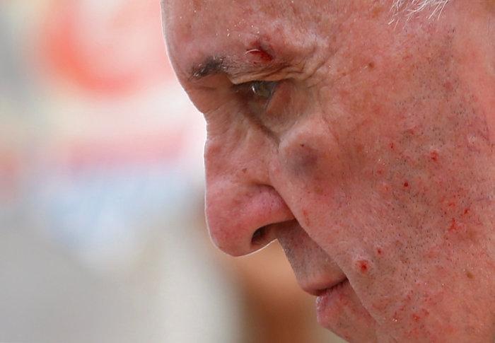 Πάπας: «Με γρονθοκόπησαν. Είμαι καλά»! - Τι συνέβη - εικόνα 2