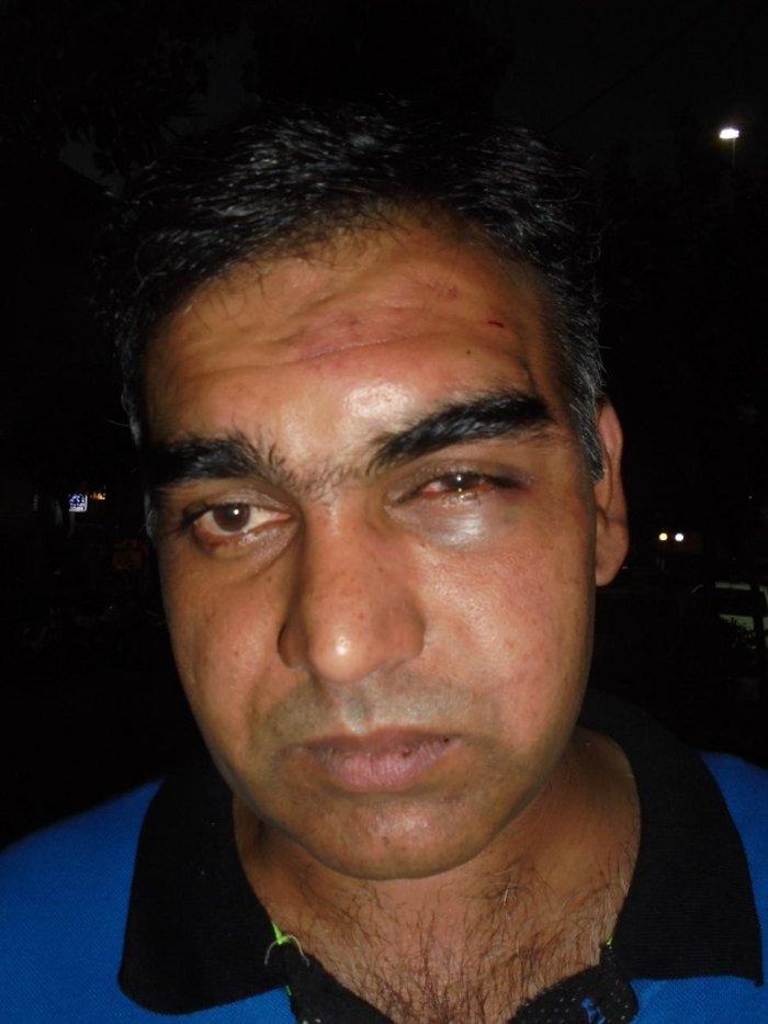 Ρατσιστική βία: Γρονθοκόπησαν άγρια Πακιστανό στη Ν. Ιωνία (ΦΩΤΟ)