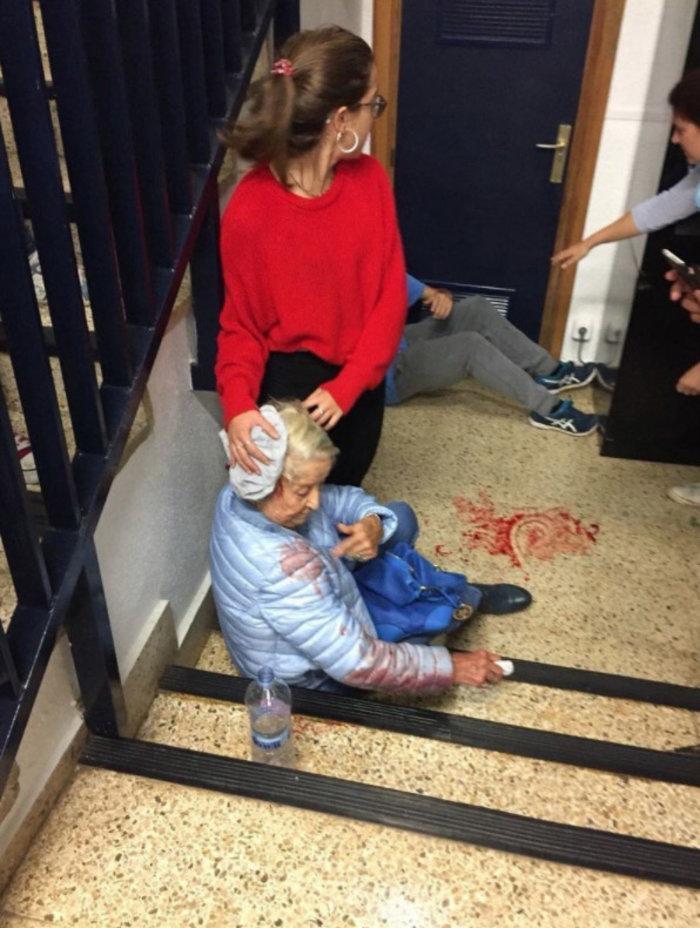 Καταλονία: 90% υπέρ της ανεξαρτησίας - 844 οι τραυματίες - εικόνα 10