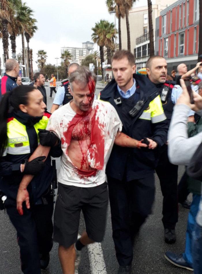 Καταλονία: 90% υπέρ της ανεξαρτησίας - 844 οι τραυματίες - εικόνα 11