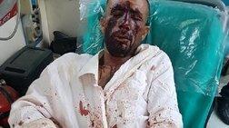 Επίθεση σε μετανάστες: «Μου φώναζαν ότι θα σας κάψουμε ζωντανούς»