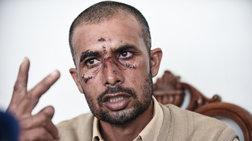 Ασπρόπυργος:Ταυτοποιήθηκε ανήλικος για την ρατσιστική επίθεση