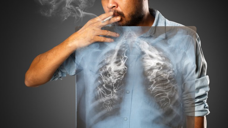 ellada-andres-nun-i-prwin-kapnistes-therizei-o-karkinos-tou-pneumona