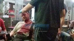 Επίθεση σε φύλακα πάρκου στην Καλλιθέα - τραυματίστηκε σοβαρά