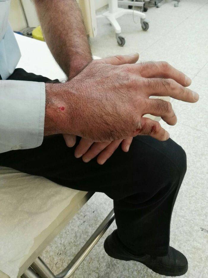 Τραυματίστηκαν αστυνομικοί μετά από επίθεση με μάρμαρα [εικόνες] - εικόνα 2
