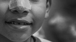 Βρετανία: Η αφαίρεση αντικειμένων από μύτες και αυτιά κοστίζει... πολύ