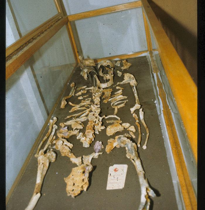 Ανασκαφικές έρευνες στη Βεργίνα . Ο «συγκροτημένος» σκελετός στο πλαίσιο της έκθεσης «Οι θησαυροί της Βεργίνας» . ΑΠΕ